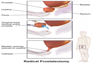 Minimally Invasive Prostate cancer Surgery in India