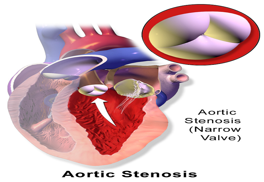 TAVR(Transcatheter Aortic Valve replacement Surgery) for Aortic Stenosis