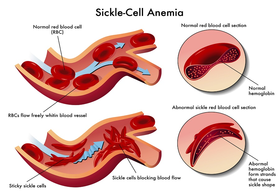 Bone Marrow Transplant for Sickle Cell Anemia