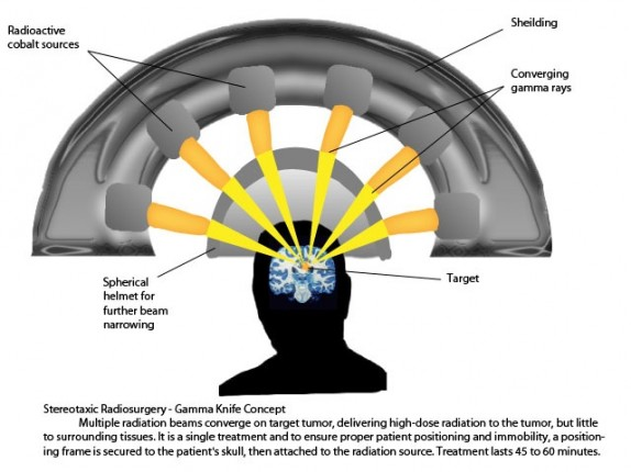 Gamma knife Radiosurgery Treatment in India