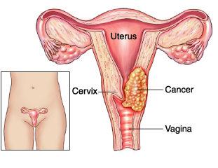 Cervical Cancer Myths and Facts HealthcaretripIndia