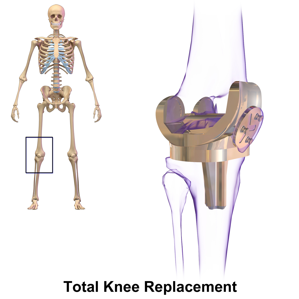 Computer Navigation Technology for Knee Replacement Surgery in India